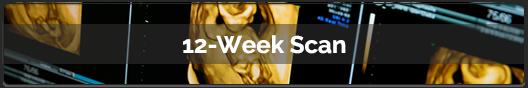 02---12-Week-Scan