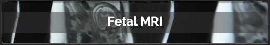 09 - Fetal MRI